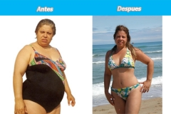 abdominoplastia_plus_espana